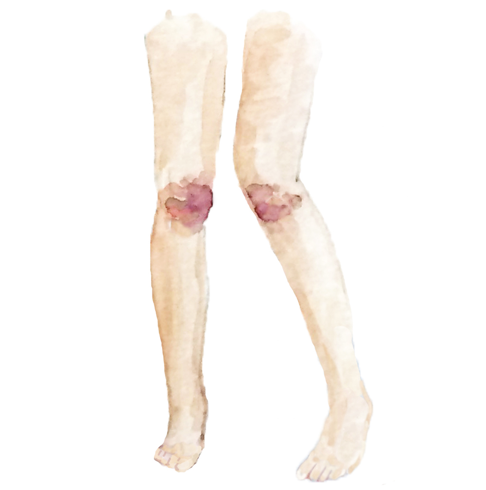 how-to-perform-fellatio-brusied-knees-illustration